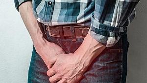Varikosel tedavi edilmezse kısırlığa sebebiyet veriyor